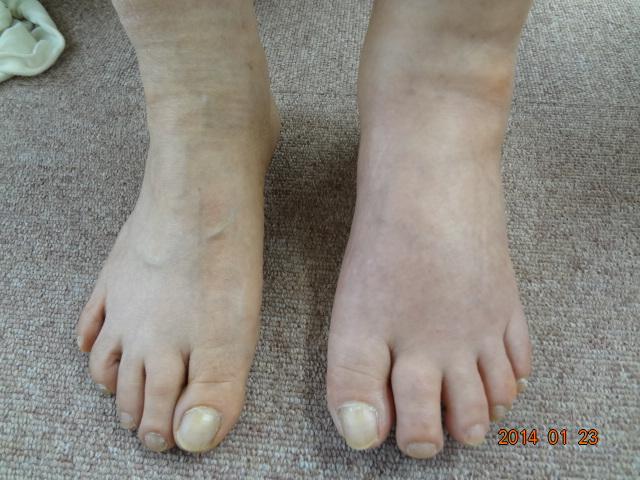 骨折があり足の甲まで腫れてしまったひどいケースの画像